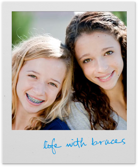 life with braces