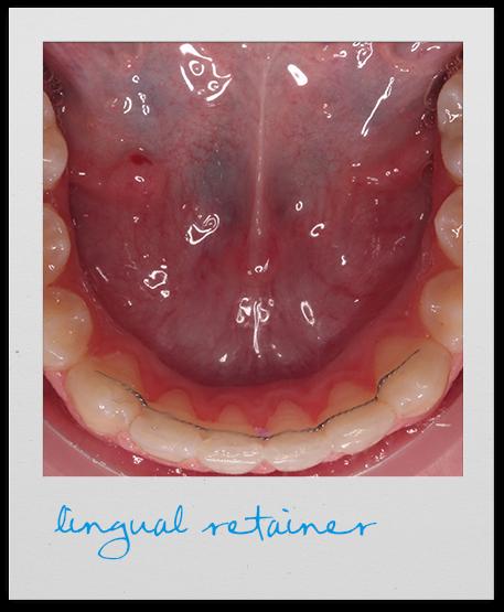 lingual retainer