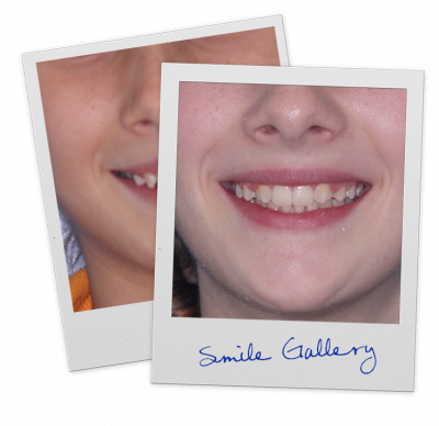 polaroid-smile-gallery